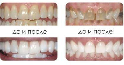 Стоматология в Киеве, акции ! - Al Dente