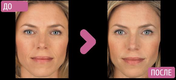 lico-do-i-posle-mikrotokov-lica